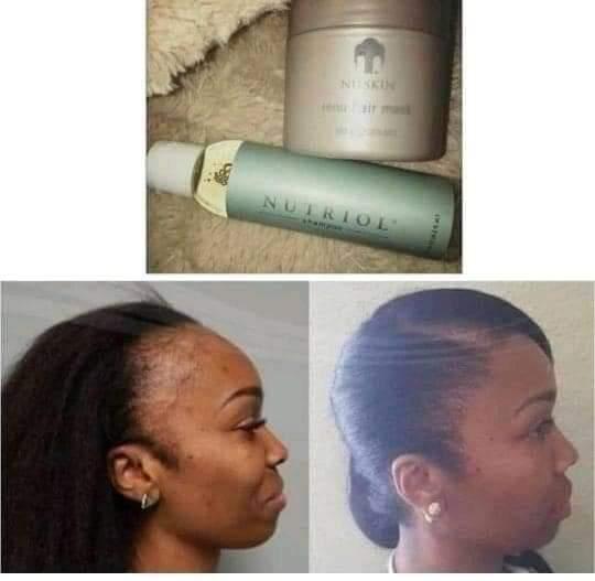 Hair growth shampoo