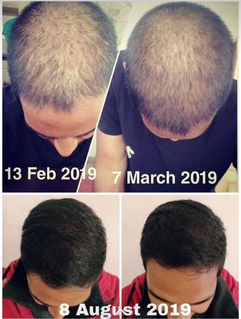 Losing hair? Hairline receding? Breakage?