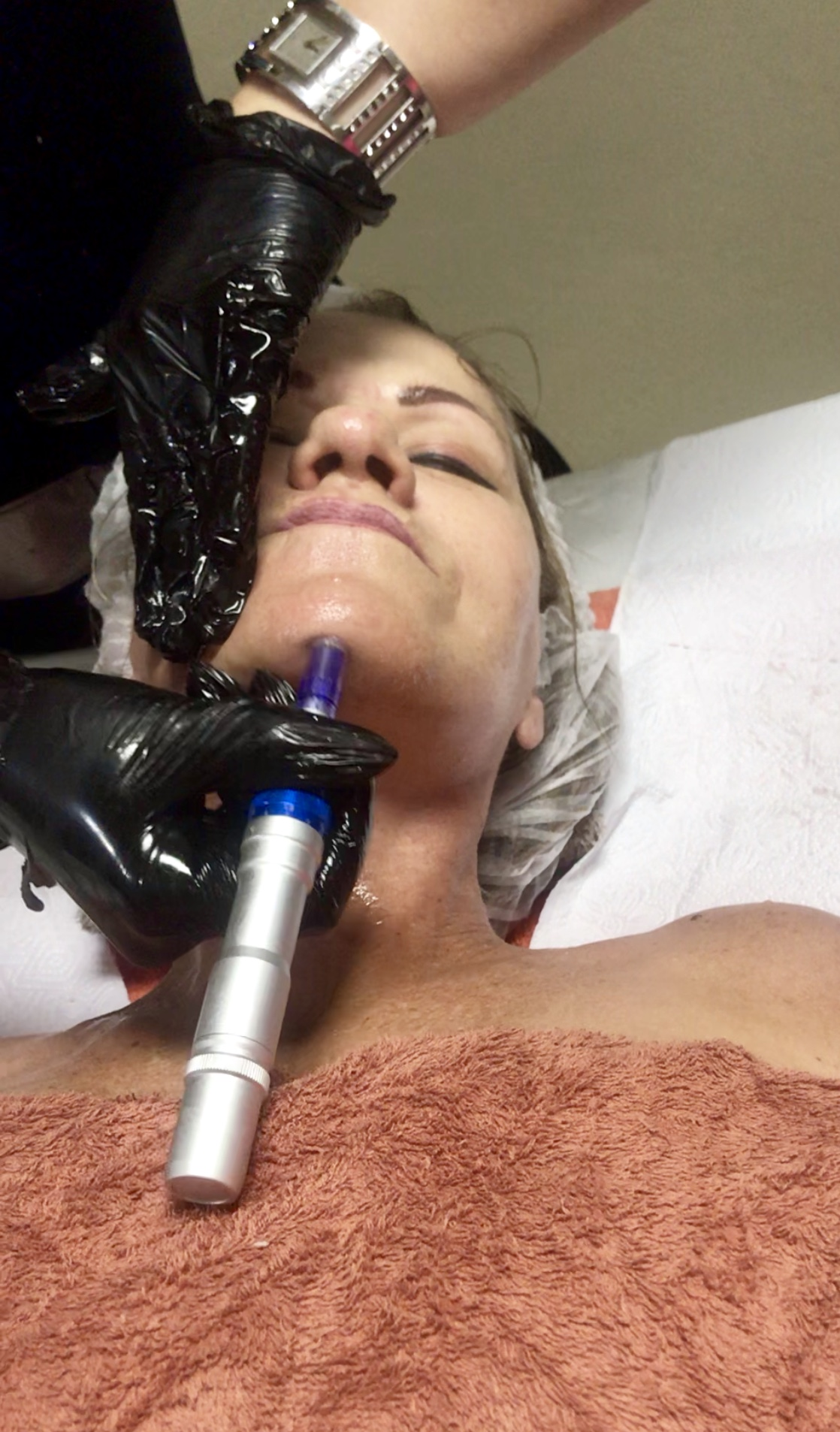 Derma pen collagen induction therapy