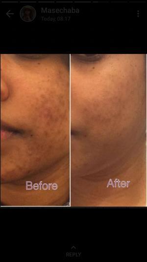 Skin corrector combo