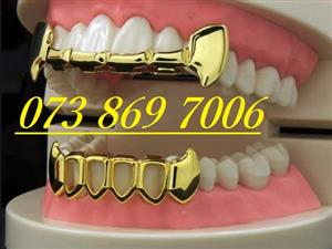 REMOVABLE Gold Teeth