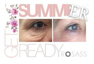 ROSASS Beauty Summer Holiday promotion