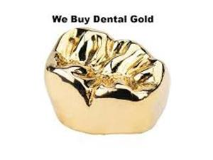 Dental Gold For Best Cash