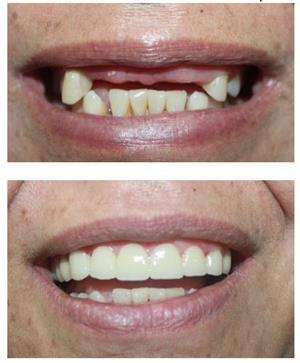 MISSING TEETH? Get temps today