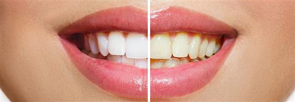 Teeth Whitening Treatments In-House