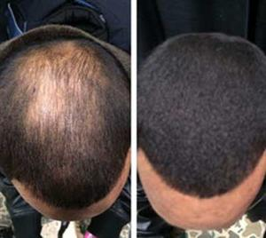 100% EFFECTIVE NATURAL BALD HEAD TREATMENT CREAM TO REGROW HAIR ON YOUR BALD HEAD