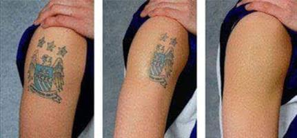 The powerful cosmetic tattoo remover which works very fast less than 3 to 5 days